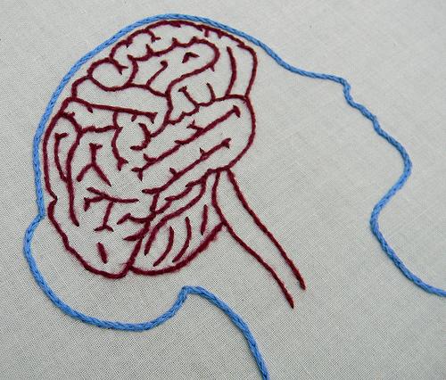 Cerebro. Foto Flickr